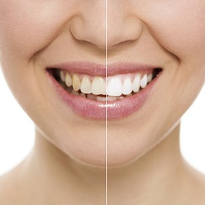 Smile before and after whitening treatment